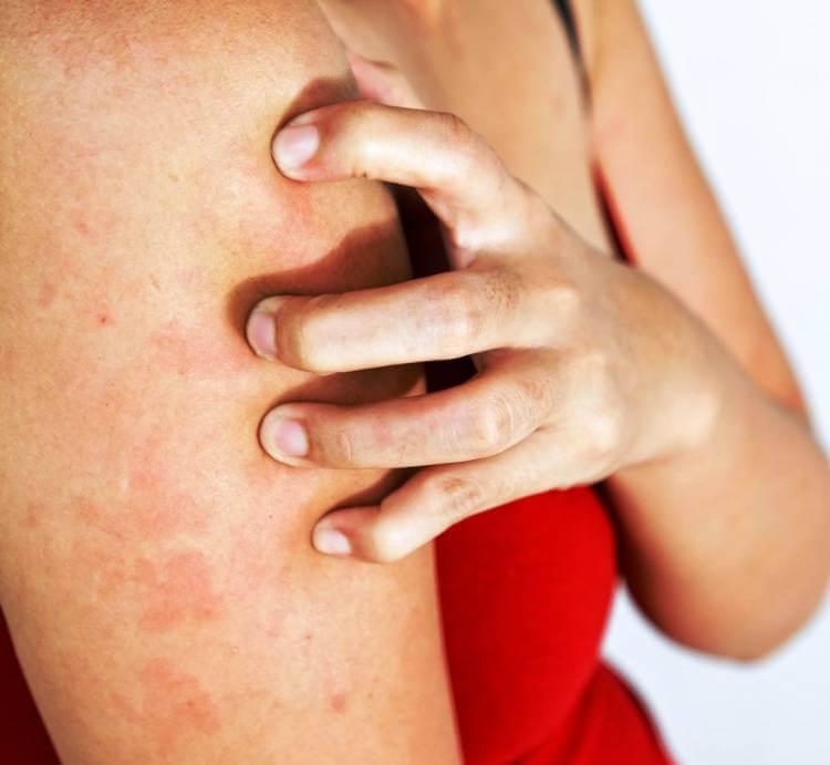Может ли быть аллергия на воду - симптомы проявления