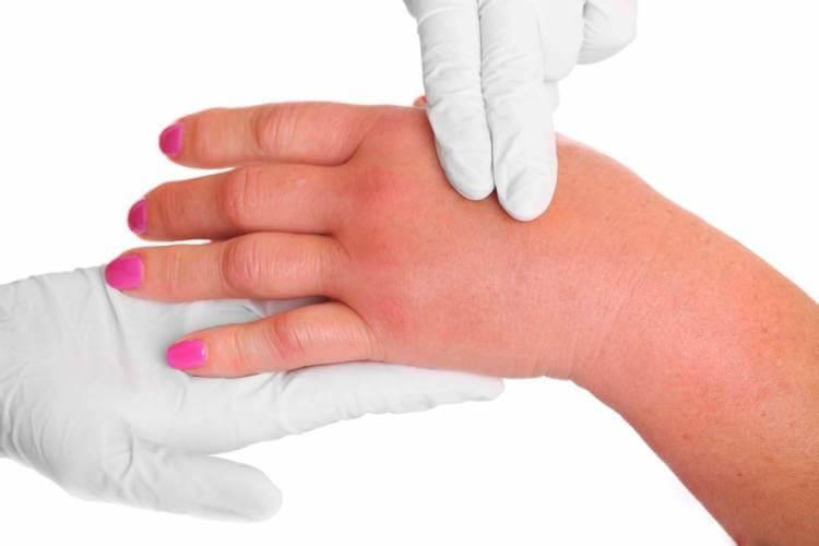 Аллергия как укус комара с отеком thumbnail
