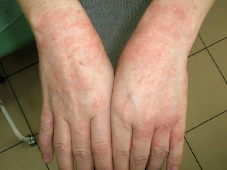аллергия на руках от шеллака