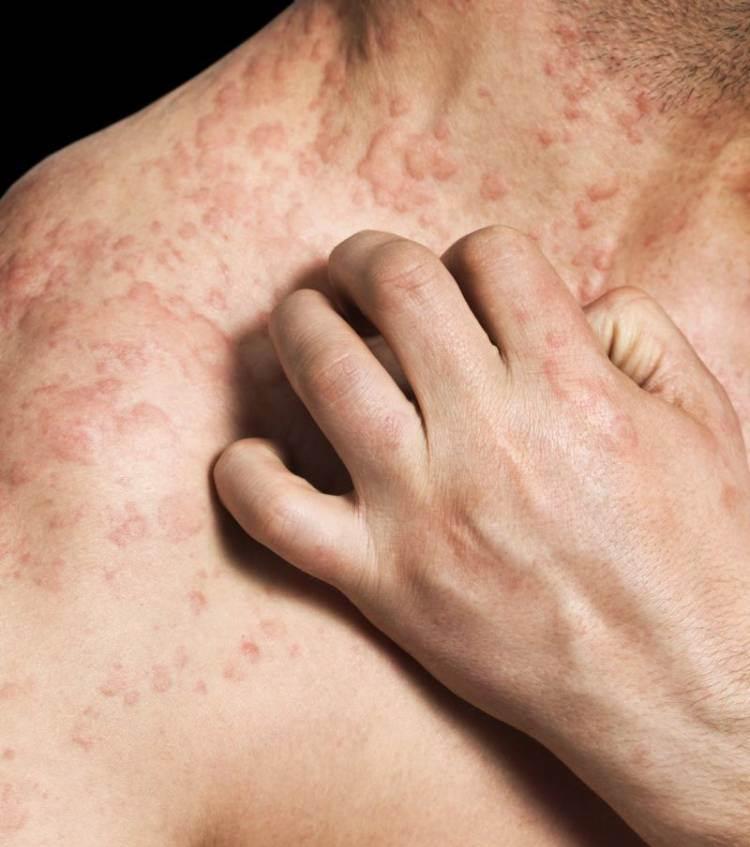 Виды аллергической сыпи у взрослых фото